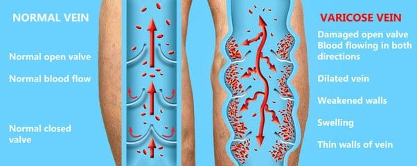 Symptoms of normal veins vs spider & varicose veins