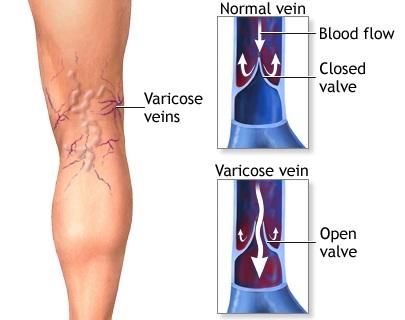 Varicose veins vs Normal vein