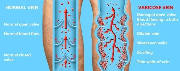 Normal veins vs unhealthy veins