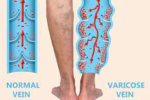 varicose veins can be treated with medical hoses
