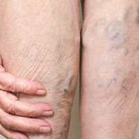 varicose veins can be treated with 15 - 20 mmHg, 20 - 30 mmHg, or 30 - 40 mmHg knee high or thigh high hosiery