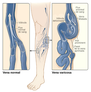 Varicose Veins Cured by Applying Compression Fabrics to the Leg