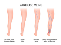 picture of normal veins and varicose viens due to edema causing swelling
