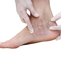 varicose veins in feet and ankles