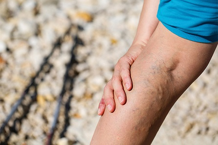 Varicose veins are not only unsightly. They can also cause other side effects such as itchiness and pain.