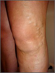 Varicose veins on a leg can lead to larger medical problems, including a blood clot or deep vein thrombosis. Wearing compression stockings can help prevent varicose veins.