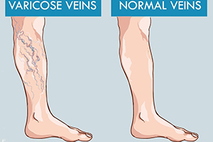 varicose veins vs normal veins