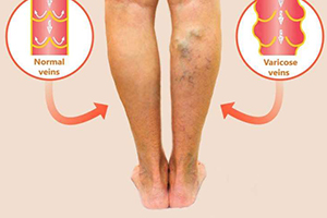 varicose veins vs. normal veins
