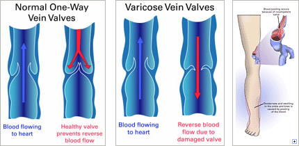 visual representation of normal versus damaged valves and how they cause varicose veins