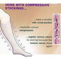 veins with large size thigh or knee highs compression stockings