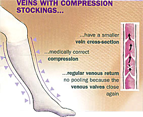 veins with compression socks