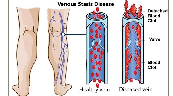 Graphic of venous reflux diseases showing how blood flow works between healthy vein valves and damaged vein valves