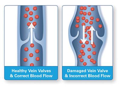 Healthy veins valves vs damaged veins valves