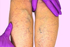 picture of person suffering from spider veins in calf muscles using compression stockings zip one is good in this
