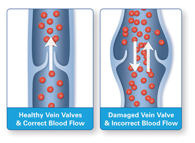 Graphic of healthy and damaged vein valves explaining blood flow
