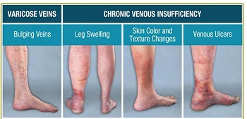 picture showing different venous disorders of lower extremities