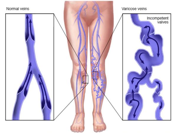 Diagram of healthy veins vs varicose veins