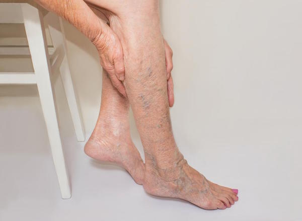 Picture of varicose veins