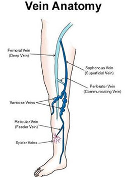 how varicose veins look like