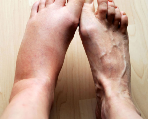 comparison between feet