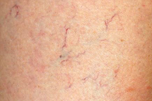 what is spider veins
