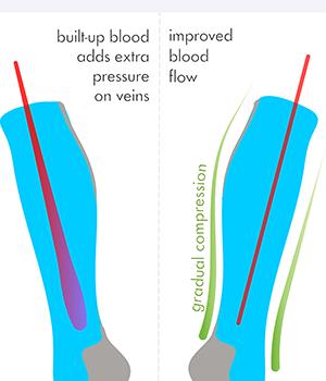 how light knee high compression socks work