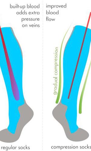 women legs support hosiery boost blood flow